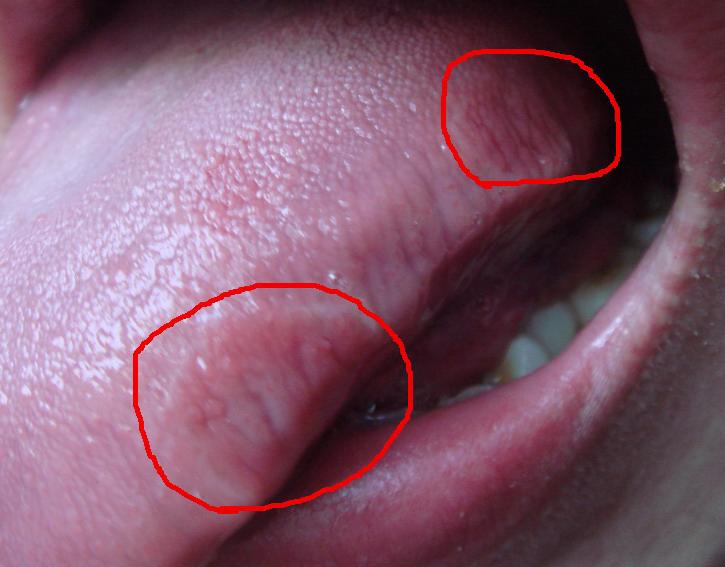 舌头溃疡怎么办