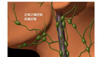 淋巴结肿大是什么原因引起的