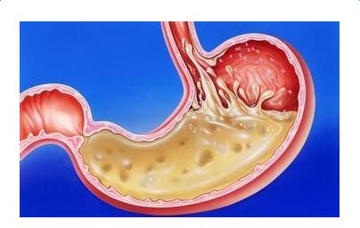 治疗胃酸的方法有哪些 治疗胃酸的方法